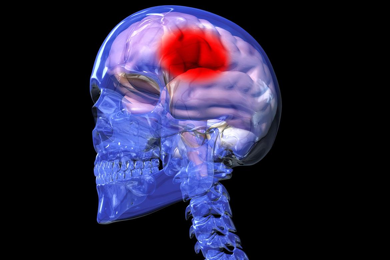 3D Medical Modelling